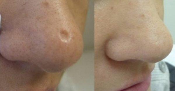 Ξεφορτωθείτε τα σημάδια και τις ουλές του δέρματος με φυσικές συνταγές