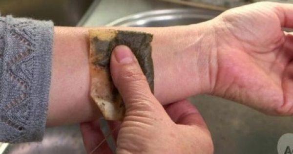 Δείτε γιατί είναι καλό να βάζετε σακουλάκια τσαγιού στον καρπό… [video]