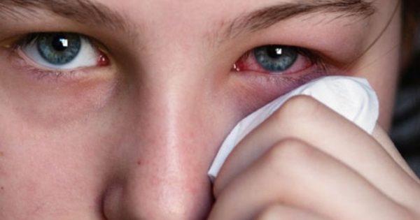 Είναι κριθαράκι ή χαλάζιο; Σε τι διαφέρουν – Αίτια, συμπτώματα, θεραπεία και πρόληψη [vid]