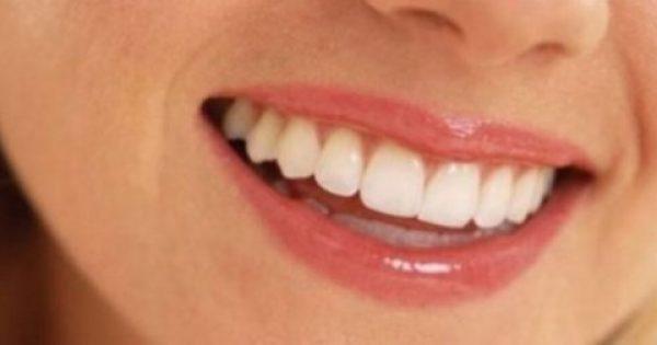 """Τα τρώτε σίγουρα, αλλά δε γνωρίζετε ότι """"διαλύουν"""" τα δόντια σας"""