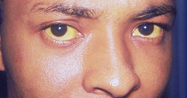 Κίτρινα μάτια: Αίτια, συμπτώματα & διάγνωση