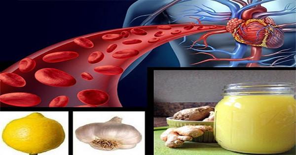 10 Τρόφιμα Που «Ξεβουλώνουν» Με Φυσικό Τρόπο Τις Αρτηρίες