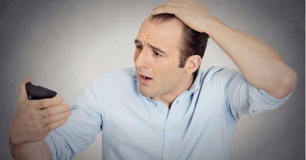 Καρδιά: Φαλάκρα και γκριζάρισμα συνδέονται με πολύ αυξημένο κίνδυνο!