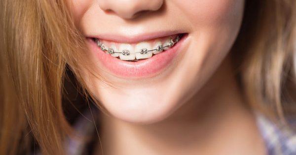 Σιδεράκια στα δόντια: Πρώτες βοήθειες για τα πιο συνηθισμένα απρόοπτα