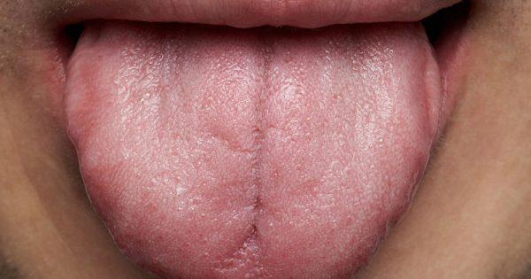 Λευκό επίχρισμα στη γλώσσα: Τι μπορεί να δείχνει για την υγεία σας