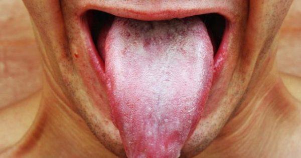 Λευκό επίχρισμα στη γλώσσα: Τι μπορεί να δείχνει για την υγεία σας!!!