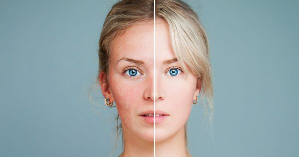 Τέσσερις αλλαγές στο πρόσωπο που δείχνουν πρόβλημα υγείας