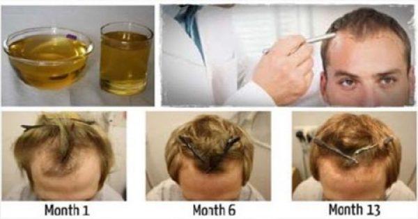 Πώς να σώσετε και να μακρύνετε τα μαλλιά σας με ένα μόνο συστατικό!!
