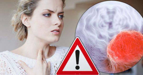 Δυσκολία στην κατάποση: Πότε μπορεί να είναι ένδειξη καρκίνου