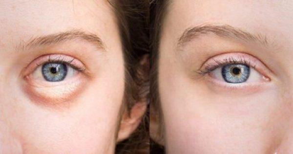 Πρησμένα Μάτια ΤΕΛΟΣ Με Αυτή Τη Φυσική Θεραπεία Χωρίς Κρέμες!