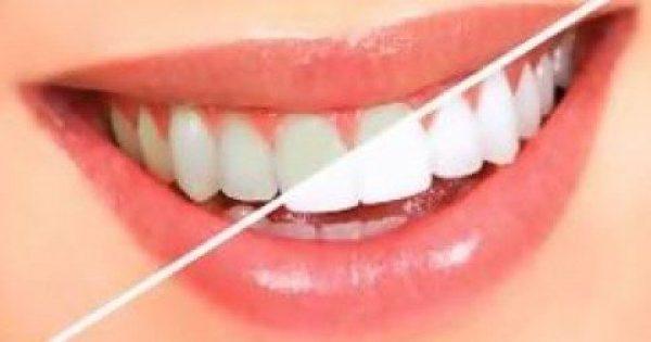 Θέλετε να κάνετε λεύκανση στα δόντια αλλά δεν έχετε λεφτά; Αυτό είναι το υλικό που έχουμε σπίτι και μπορεί να το πετύχει!