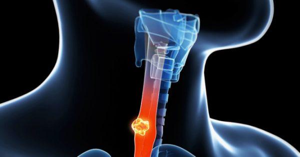Το πρώτο μη επεμβατικό τεστ ανίχνευσης του κινδύνου για καρκίνο του οισοφάγου, μέσω μικρού μπαλονιού που καταπίνεται