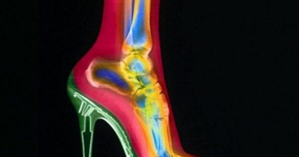 Ψηλοτάκουνες γόβες: «Μπρος στα κάλλη τι είναι ο πόνος»!!!
