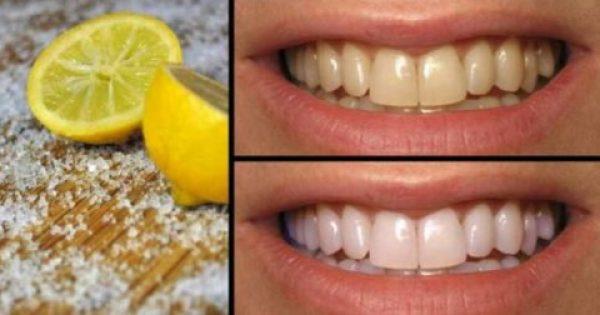 Λεμόνι Το Θαυματουργό! 4 Τρόποι Για Να Αντιμετωπίσετε Όλα Τα Προβλήματα Με Τα Δόντια Σας