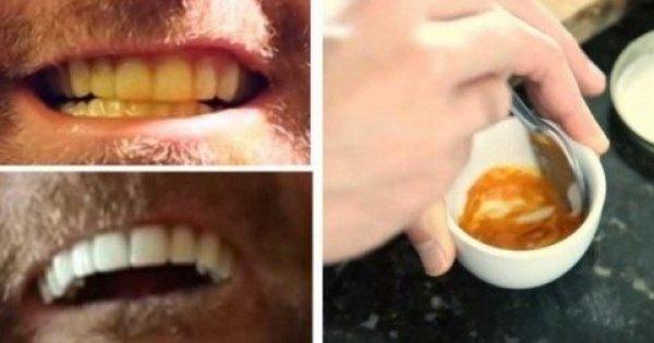 Αυτός ο Άνδρας μας Δείχνει ΠΩΣ να Λευκάνουμε Μόνοι τα Δόντια μας. Καταπληκτικό;