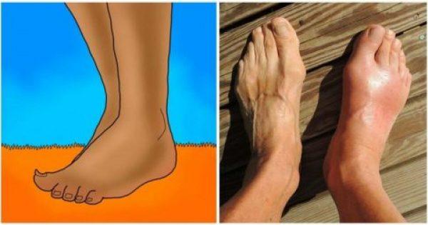 10 πράγματα που αποκαλύπτουν τα πόδια για την υγεία μας