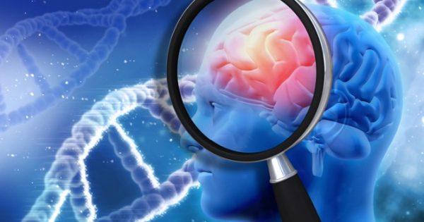 Αλλάζουν όλα στο Αλτσχάιμερ: Τεστ με 90% επιτυχία ακόμα και στα αρχικά στάδια της νόσου!