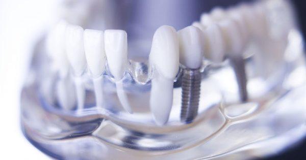 Έλλειψη δοντιών: Πού οφείλεται και πώς αντιμετωπίζεται