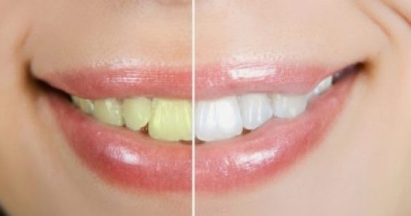 Τέσσερις φυσικοί τρόποι για πιο λευκά δόντια…