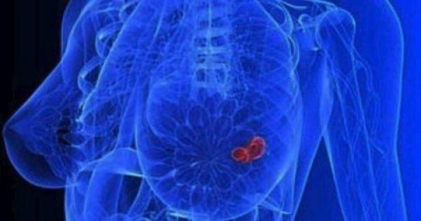 Έρευνα:Η ασπαραγίνη, σε πολλά τρόφιμα, ευνοεί την εξάπλωση του καρκίνου του μαστού