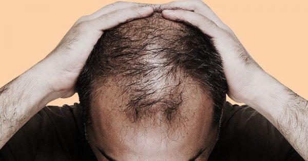 Ανδρική τριχόπτωση: 6 λόγοι που οι άνδρες χάνουν τα μαλλιά τους πρόωρα