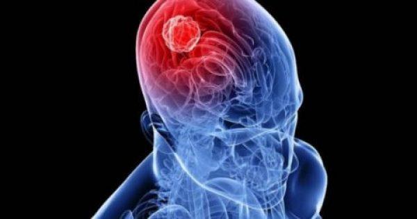 Όγκος στο κεφάλι: Πώς θα τον καταλάβετε – Ποιοι κινδυνεύουν