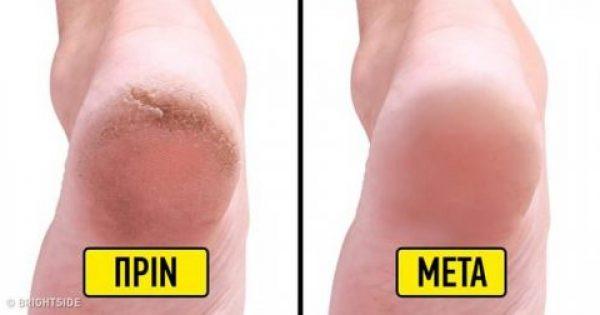 10 σπιτικές θεραπείες για να απαλλαγείτε από τις σκασμένες φτέρνες και να αποκτήσετε όμορφα πόδια