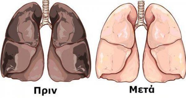 Η Θαυματουργή Συνταγή που Καθαρίζει τα Πνευμόνια και διώχνει την Νικοτίνη από τον Οργανισμό σε μόλις 72 ώρες!!!-ΒΙΝΤΕΟ,ΦΩΤΟ