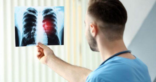 Οι ουσίες που καταστρέφουν τους πνεύμονες – Δείτε σε ποια προϊόντα βρίσκονται
