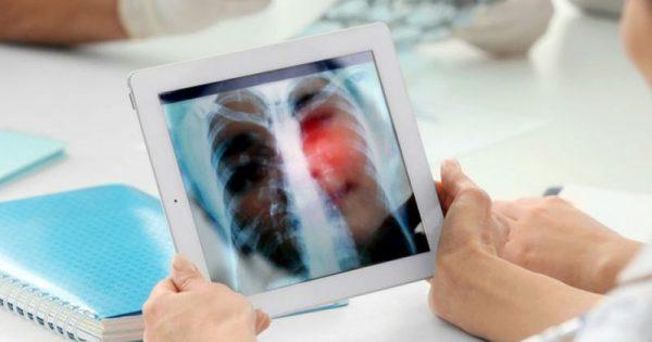 Καρκίνος του πνεύμονα: Το σύμπτωμα που δεν πρέπει να αγνοήσετε!!!