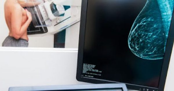 Καρκίνος μαστού: Ποια είναι η σωστή εξέταση πρόληψης – Οι γιατροί απαντούν