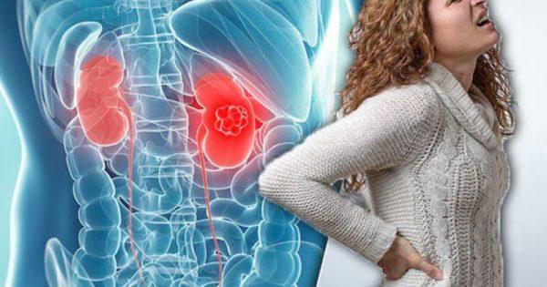 Καρκίνος στα νεφρά: Γιατί να μην αμελείτε ΠΟΤΕ τον πόνο στα πλευρά!!!-BINTEO