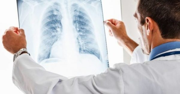 Ο συνδυασμός ινδακατερόλης/γλυκοπυρρονίου βελτίωσε την καρδιακή λειτουργία σε ασθενείς με ΧΑΠ