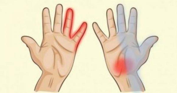 """Τα χέρια μας μπορούν να """"αποκαλύψουν"""" έξι ασθένειες -Δείτε ποιες είναι!"""