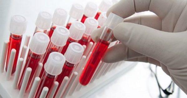 Χαμηλός ή υψηλός αιματοκρίτης; Τι δείχνει για την υγεία σας
