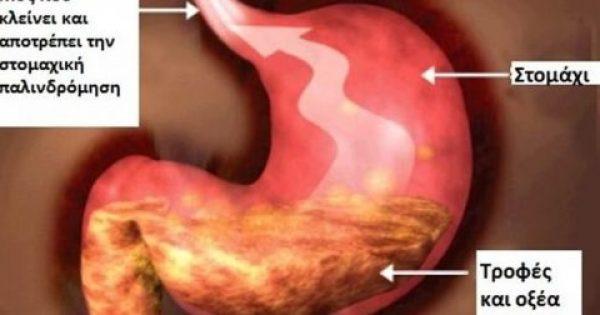 Η ιδανική διατροφή για την στομαχική παλινδρόμηση