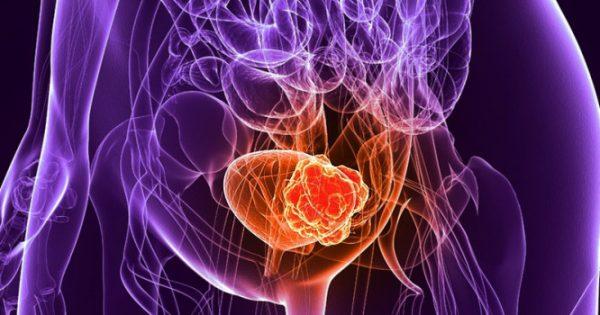 5 πράγματα που πρέπει να ξέρετε για τον καρκίνο της ουροδόχου κύστεως