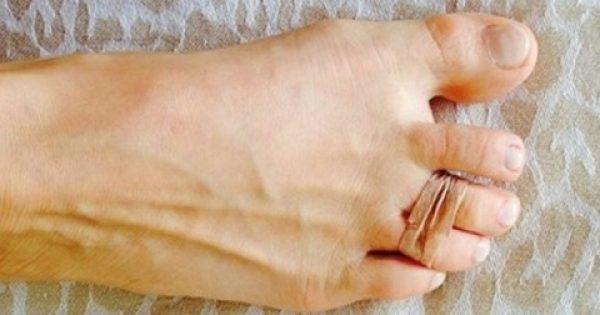 Κάθε μέρα έδενε δύο δάχτυλα των ποδιών της με ένα λαστιχάκι – Με αυτόν τον τρόπο απαλλάχθηκε από τους πόνους!