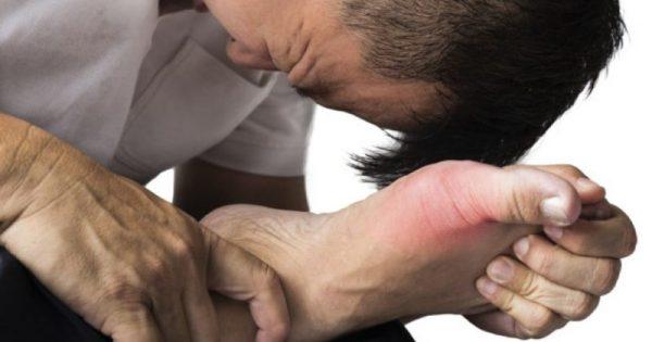 Ουρικό οξύ: Συμπτώματα, αντιμετώπιση και φυσιολογικά επίπεδα!!!-BINTEO