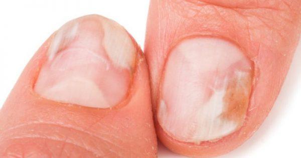 Μύκητες στα νύχια χεριών και ποδιών: Οι 8 κανόνες πρόληψης!!!