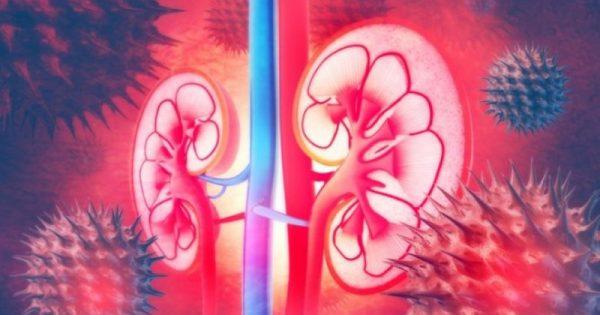 Καρκίνος του νεφρού: Ποιοι είναι οι 3 εξελικτικοί τύποι!!!