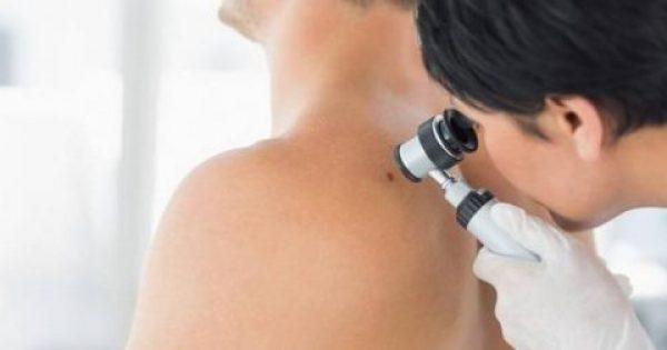 Καρκίνος δέρματος: 9 άγνωστοι παράγοντες που σίγουρα αγνοείτε!