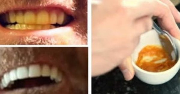 Καταπληκτικό – Αυτός ο άνδρας μας δείχνει πως να λευκάνουμε μόνοι τα δόντια μας – Θα το κάνετε σίγουρα [photos]