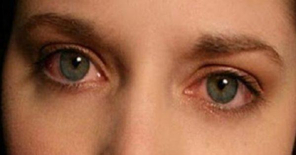 Κοκκίνισμα ματιών: Οι αιτίες και τι μπορείτε να κάνετε