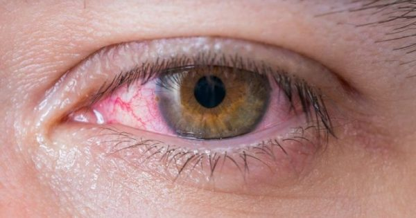 Κοκκίνισμα ματιών: 9 αιτίες και τι μπορείτε να κάνετε!!!