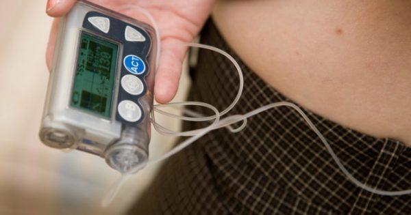Διαβήτης τύπου 1: Καλύτερη θεραπεία με «τεχνητό πάγκρεας» έδειξε έρευνα με ελληνικό χρώμα