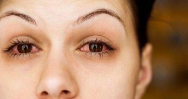 Αλλεργία στα μάτια: Αντιμετώπιση για φαγούρα, κοκκίνισμα και δάκρυα