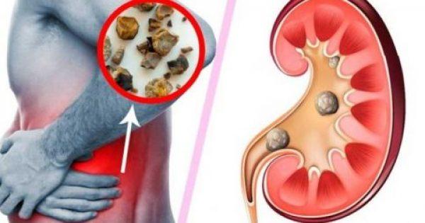 Καταστρέφετε Τα Νεφρά Σας! 10 Συνήθειες Που Πρέπει Να Αλλάξετε