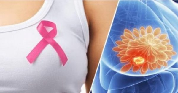 10 προειδοποιητικά σημάδια του καρκίνου του μαστού