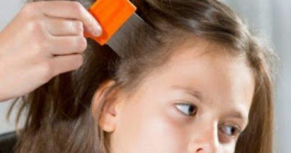 Ανατριχιαστικό βίντεο: Η χειρότερη περίπτωση με ψείρες στο κεφάλι ανθρώπου